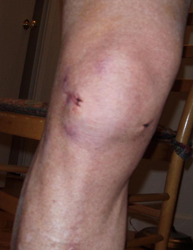MENISCUS TEAR RECOVERY AFTER SURGERY